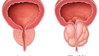 Triệu chứng của phì đại tuyến tiền liệt là gì?