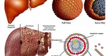 bệnh Viêm gan B-Dấu hiệu nhận biết và cách chữa