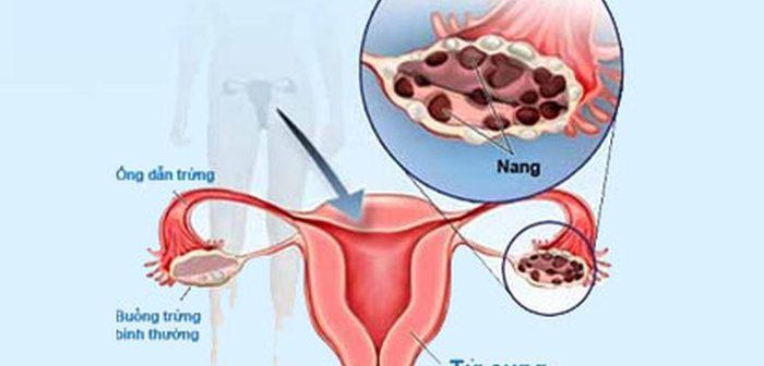 Nguy hiểm khi bị buồng trứng đa nang